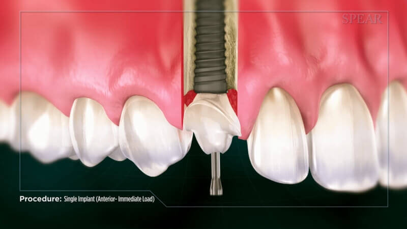 Single Implant (Anterior Immediate Load)