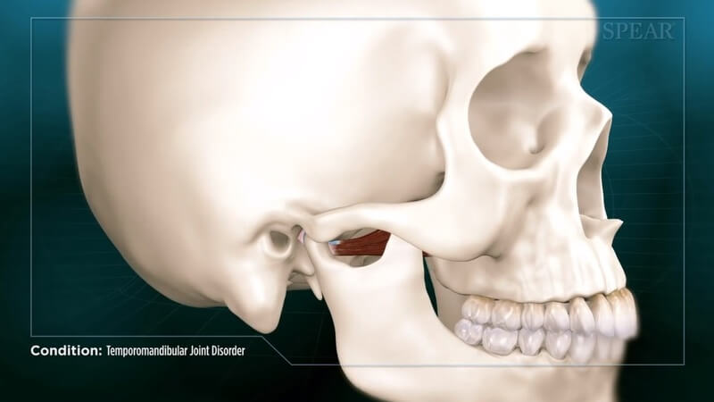 Temporomandibular Joint Disorder (TMD)